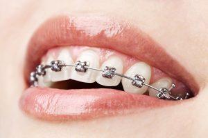 teeth-with-braces-damon
