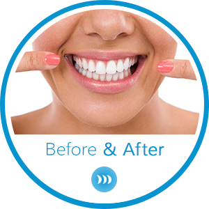 Before and After Horizontal Button at Britto Orthodontics in Chantilly and Woodbridge VA