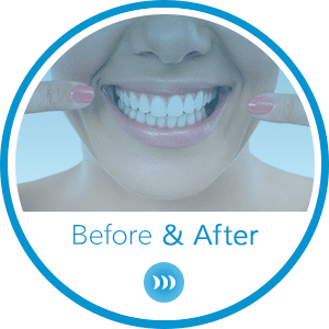 Before and After Horizontal Hover at Britto Orthodontics in Chantilly and Woodbridge VA